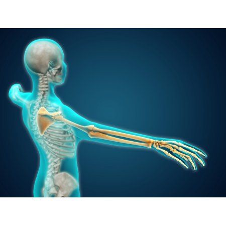 X-ray view of human body showing skeletal bones in the arm and hand Canvas Art - Stocktrek Images (17 x 13)