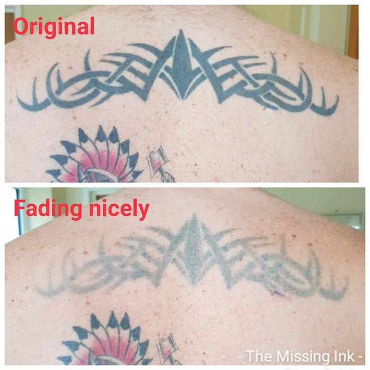 Dark tribal Laser tattoo removal, Tattoo removal, Laser