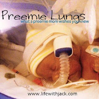 Preemie Lungs: what a preemie mom wishes you knew // file under learning to serve/love other moms and their kids