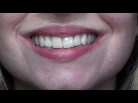 How to Whiten Teeth With Hydrogen Peroxide: 9 Steps