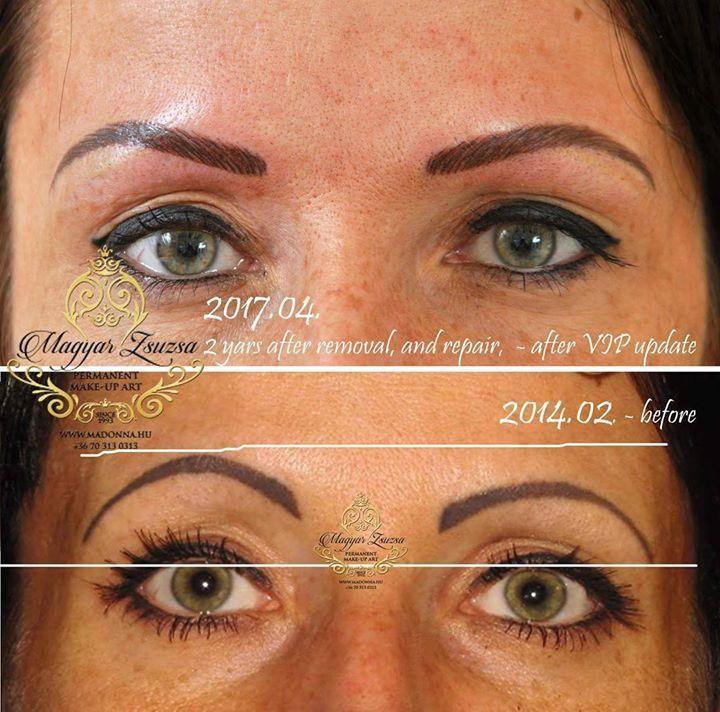 #tattoremoval #pmu #magyarzsuzsapmuart #magyarzsuzsa #permanentmakeup tattoorepair #eyebrows #eyepermanent #tattoremovalbudapest Elképesztő állapotok!!!! Nem internetről összegyűjtött hanem saját eltávolítás- javítás munkáim itt: Utolsó Esély Szalon http://ift.tt/2lgpYSB Réka 2014-ben első találkozásunk pillanatában lent és most. :-) 2007 óta 11. éve foglalkozom tetoválás eltávolítással. Sajnos ma már Magyarországon a legtöbb esettanulmánnyal és nagy tapasztalattal rendelkezem egy kézben…