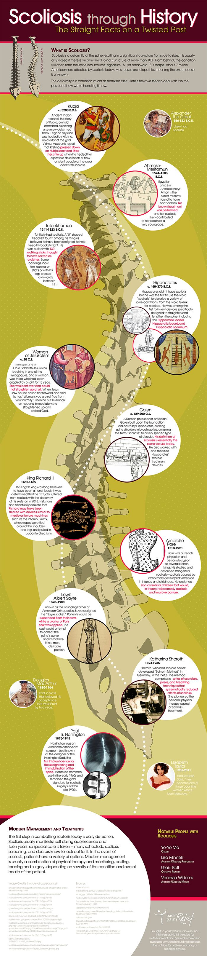History of physical therapy treatment - Scoliosis Through History Infographic