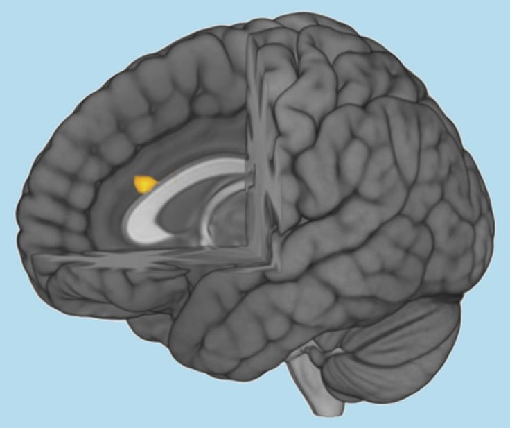 Researchers report the anterior cingulate cortex, an area of the brain associated with empathy, activates very weakly in people with autism.