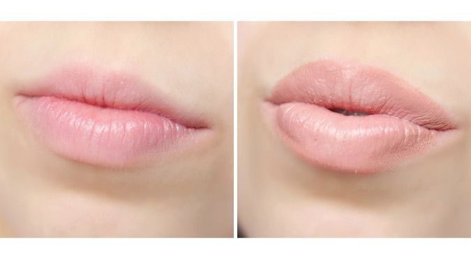 For those of you who are looking to have bigger lips without medical assistance, here are a few home remedies that should make your lips look fuller.