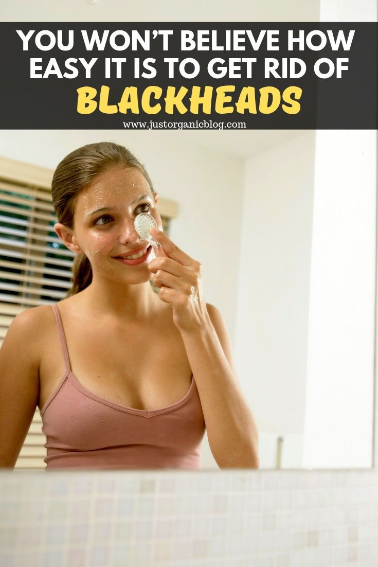 You Won't Believe How Easy It Is to Get Rid of Blackheads!