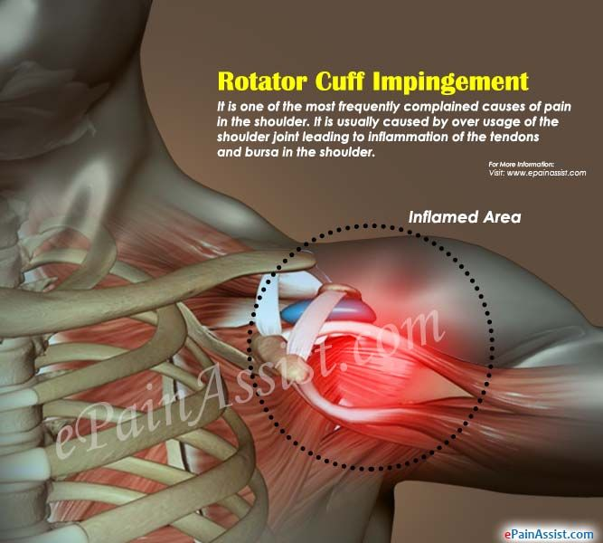 What Are The Causes Of A Torn Rotator Cuff