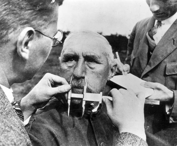 """Experts"" of the German pseudo science of ""racial purity"" use a caliper to measure the nose of a subject in order to determine his ""Aryan characteristics."" Failure to pass the ""test"" meant deportation or worse."