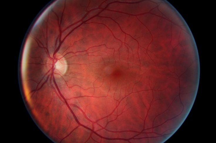 Nous ne voyons pas le monde, nous voyons «notre» monde...  Fond de l'oeil gauche de Tony Hayère, la masse sombre au centre est la Macula, le petit cercle blanc à gauche est le nerf optique