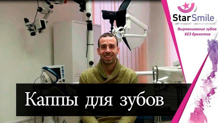 Кривые зубы у мужчины. И как из них сделать идеальную улыбку ★Star Smile★