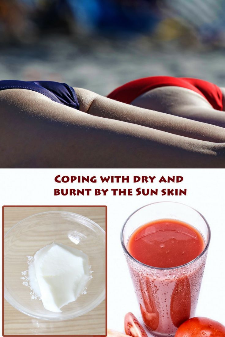 Natural Sunburn Relief with a tomato juice. beauty skin care tips natural | beauty skin tips | beauty skin tips remedies | sunburn relief | sunburn relief remedies | sunburn relief diy  | sunburn relief diy | sunburn relief diy  natural | sunburn relief diy summer