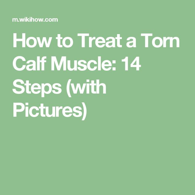 How to Treat a Torn Calf Muscle: 14 Steps (with Pictures)