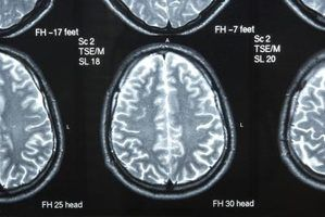 Symptoms of White Matter Brain Disease brought on by Multiple Sclerosis