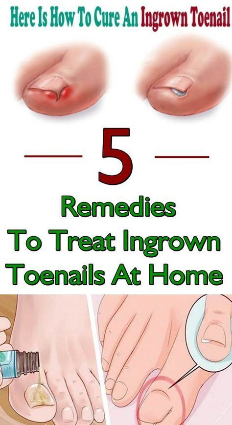 5 Home Remedies for Ingrown Nails That Are Really Working | health ...