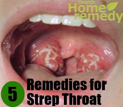 Would Herbs for strep throat
