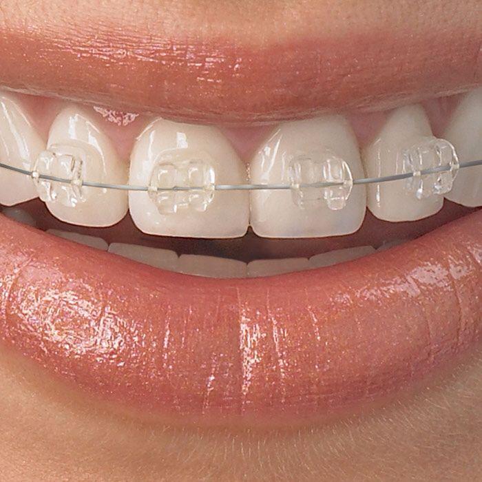 The Best Soft Foods For Braces   Braces   Orthodontics ...