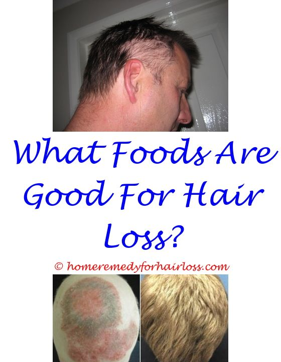 16 best Propecia Hair Loss images on Pinterest | A letter, Beat ...