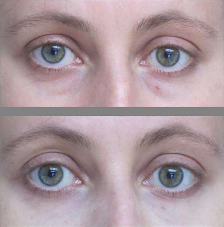 Botox under eye bags Körüli - 2019