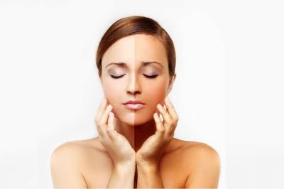 Simple Home Remedies to whiten blackened and tanned skin! http://go.shr.lc/1r9jqV9  #BeautyTips #RemoveTanning #BeautyBlogger #HomelyTips #RemoveBlackPatches #NaturalIngredientsToBeauty