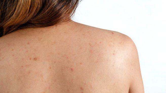 Granos En La Espalda Los Mejores Trucos Para Eliminarlos Vas A Quedar Sorprendido Creciendo Saludabl Shoulder Acne Chest Acne Rotator Cuff Tear Treatment