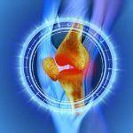 5 dicas para eliminar a dor nos joelhos em 48 horas