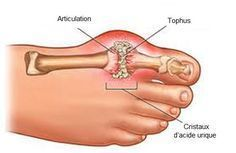 La maladie connue sous le nom de goutte est due à une production trop élevée d'acide urique dans le sang.