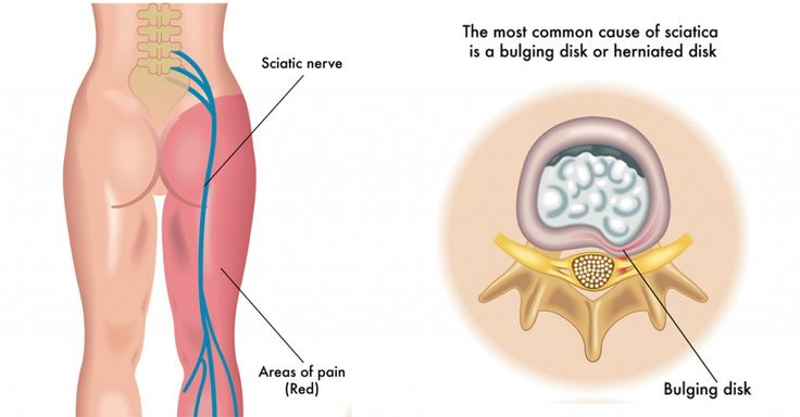 Best Natural Remedies For Sciatic Pain