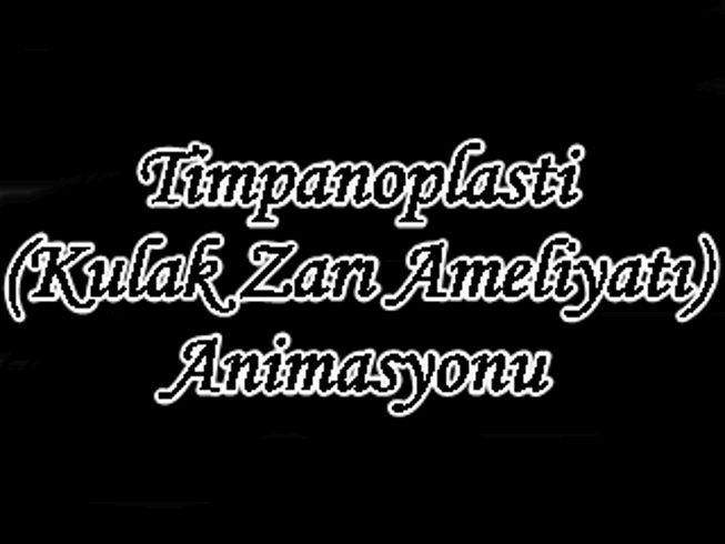 Kulak Zarı Ameliyatı (Timpanoplasti) - Animasyonlu Anlatım  Dr. Murat Enöz  www.kulakburunbogaz.info  www.saglikhaber.info  www.burunkurulugu.com  www.kulakzari.ameliyati.info