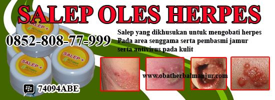 Pada herpes labialis, gelembung berisi air terdapat di sekitar bibir yang menyebabkan rasa panas dan gatal. Herpes keratitis, infeksi virus mengenai kornea mata yang dapat menimbulkan luka. Sementara herpes genitalis yang ditularkan melalui hubungan seksual ini memberikan gejala setelah beberapa hari.  http://www.obatherbalmanjur.com/2014/01/salep-untuk-penyakit-herpes.html