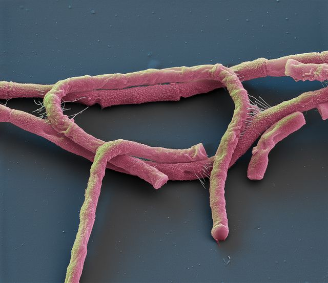 Bacillus anthracis. Bacteria used as biological weapon: Anthrax. Oliver Meckes