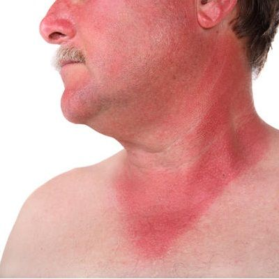 Top Home Remedies For Sunburn