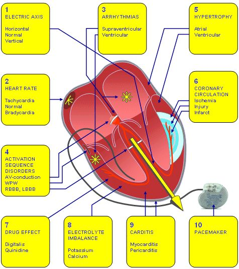 electrical conductivity of the heart and what can affect ...