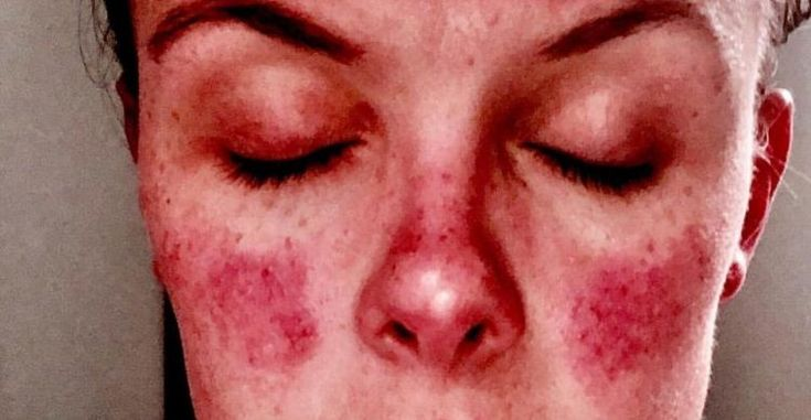 woman with butterfly rash on her cheeks due to lupus