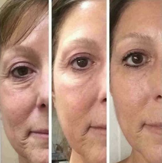 The Top Face Gymnastics Exercises To Look Younger For A No Surgery Facelift