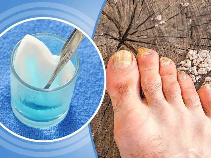 Micoza Unghiei, Ciuperci 窶・Tratament cu Bicarbonat de Sodiu | LaTAIFAS