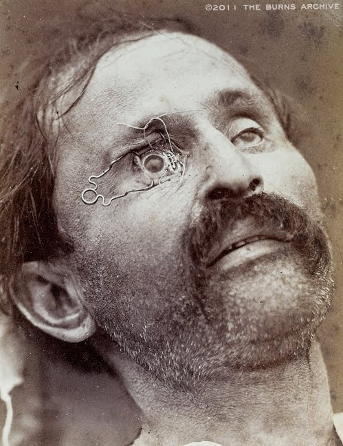 """TEACHING EYE SURGERY WITH CLOSE-UP PHOTOGRAPHY, 1870  In 1870, a French ophthalmologist named Edouard Meyer included a series of photos in his textbook on surgery. The film of the era was too """"slow"""" to take photos of actual operations, so he staged photos using cadavers. In this photo, a clamp holds the eye open to show where a scalpel should be positioned to remove a cataract.: Eye Here Infection Etc, Eye Surgery, Eye Open, Dark History, Staging Photo, Close Up Photography, French Ophthalmologist, Meyer Includ, Freaky History"""