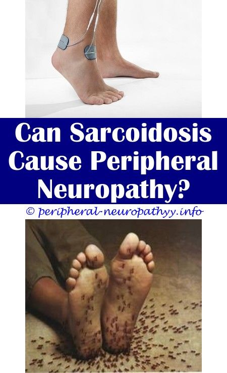 Best homeopathy medicine for peripheral neuropathy.Demyelinating neuropathy  condition.What is neuropathy of the hands - Peripheral Neuropathy.