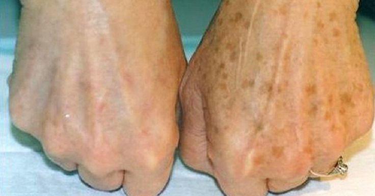 La pelle del viso e delle mani oltre ad essere particolarmente delicata, è quella maggiormente esposta agli agenti atmosferici.