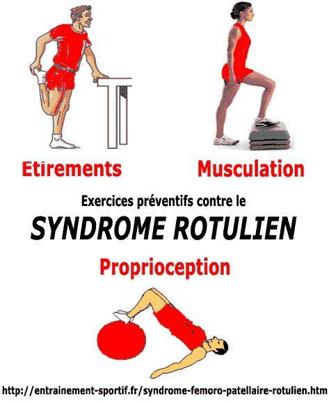 exercices préventifs contre le syndrome rotulien