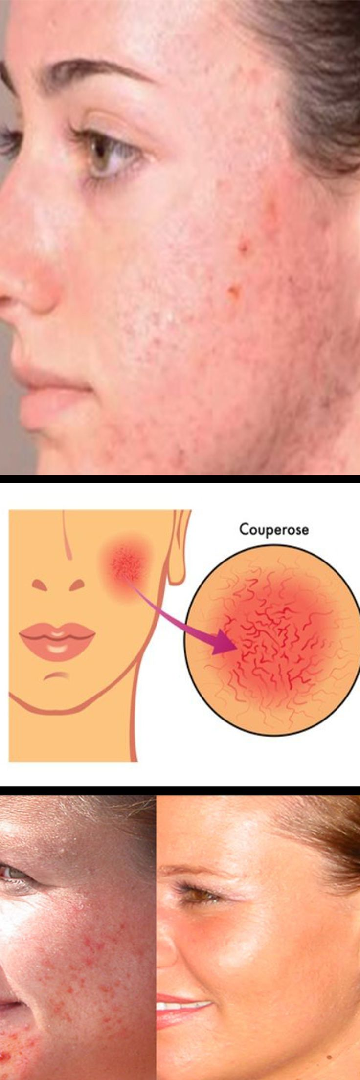 Having some redness on your face is a sign of a healthy complexion, but too much facial flushing can leave you embarrassed and frustrated. But it's not just embarrassment or stress that can turn your face red. Excessive redness on your face can be brought on by rosacea, lupus, acne, eczema, perimenopause, or dry skin on your face. Other factors like extreme weather conditions, drinking too much alcohol, or stress can all contribute to facial redness.
