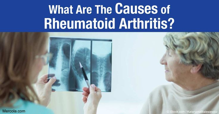 Find out the causes of rheumatoid arthritis, how it is acquired, and how you can protect yourself from it. http://articles.mercola.com/rheumatoid-arthritis/causes.aspx