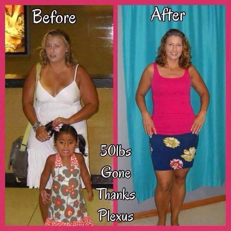 Post bariatric surgery dating