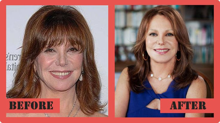 Marlo Thomas Plastic Surgery Before And After Marlo Thomas Plastic - plastic surgery consultant sample resume