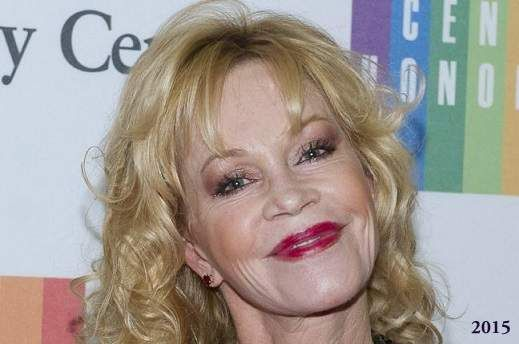 Melanie Griffith Plastic Surgery Before And After Photos