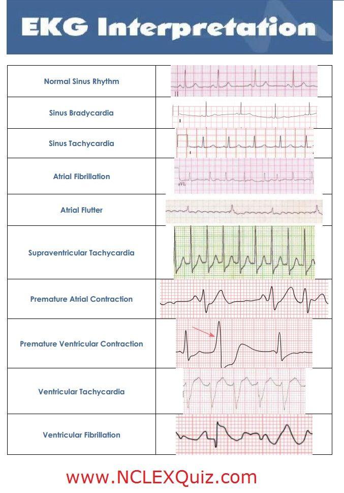 10 Common Heart Rhythms Cheat Sheet http://www.nclexquiz.com/blog/10-ekg-rhythms/