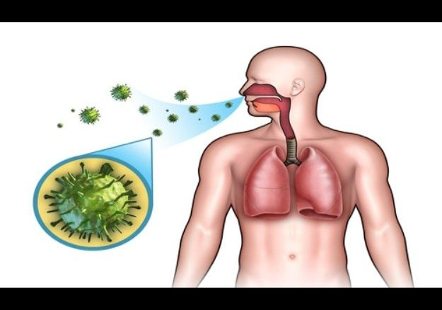 HJow to Get Rid of Pneumonia at Home. Remedies for Pneumonia Treatment. Cure Pneumonia Fast. Treat Pneumonia Naturally. Heal Pneumonia Fast at Home.