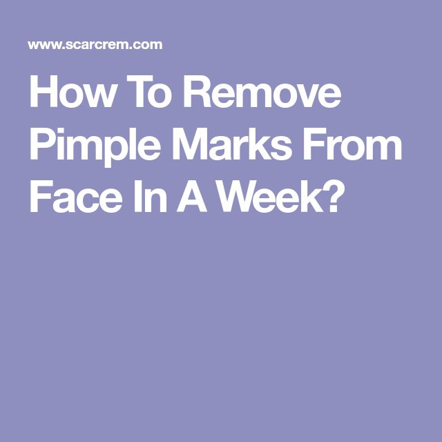 How To Remove Pimple Marks From Face In A Week?
