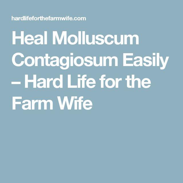 Heal Molluscum Contagiosum Easily – Hard Life for the Farm Wife