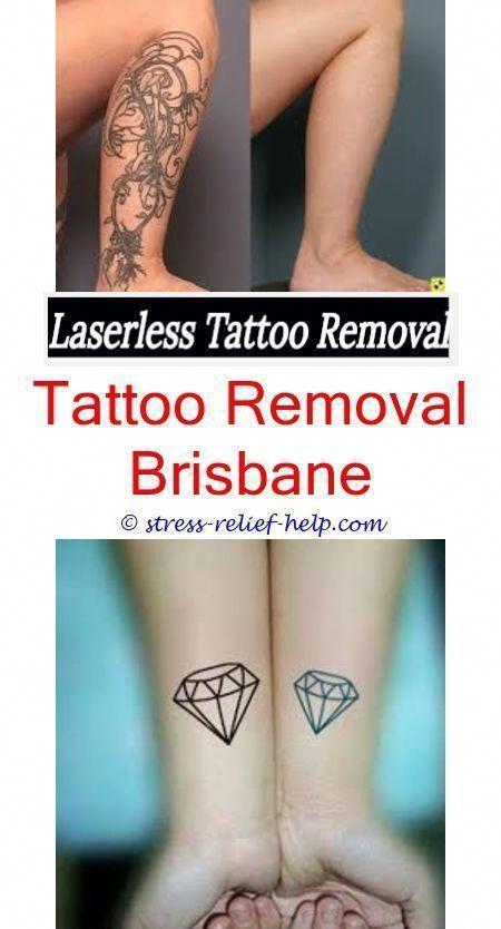 tattoo removal prices tattoo removal methods - tca acid tattoo ...