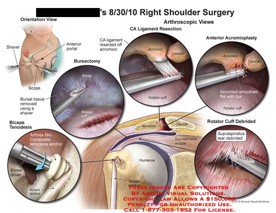 amicus,surgery,shoulder,shaver,scope,portal,bursal,tissue,bursectomy,rotator,cuff,CA,coracoacromial,ligament,acromion,clavicle,acromioplasty,smoothed,bur,debrided,supraspinatus,tear,muscle,humerus,biceps,tendon,tenodesis,arthrex,biocomposite,anchor,screwdriver