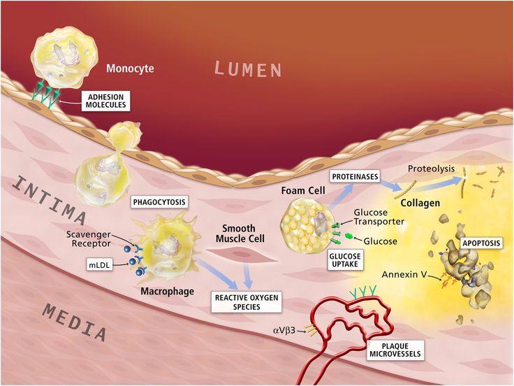 cholesterol and atherosclerosis - Google Search CSV Pinterest